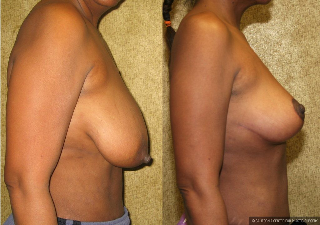 Breast Augmentation Before & After Patient #10440