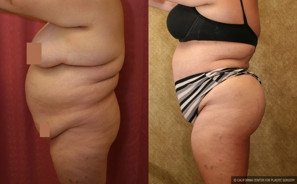 Body Contouring Before & After Patient #10419
