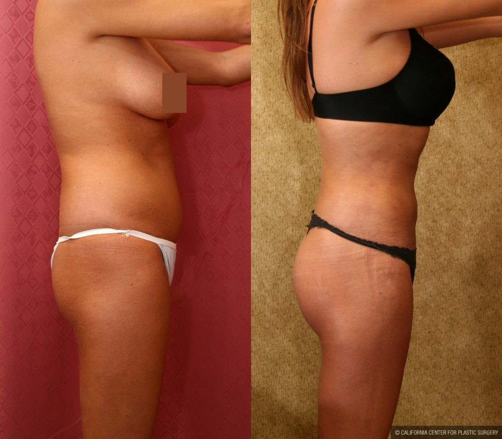 Body Contouring Before & After Patient #10407