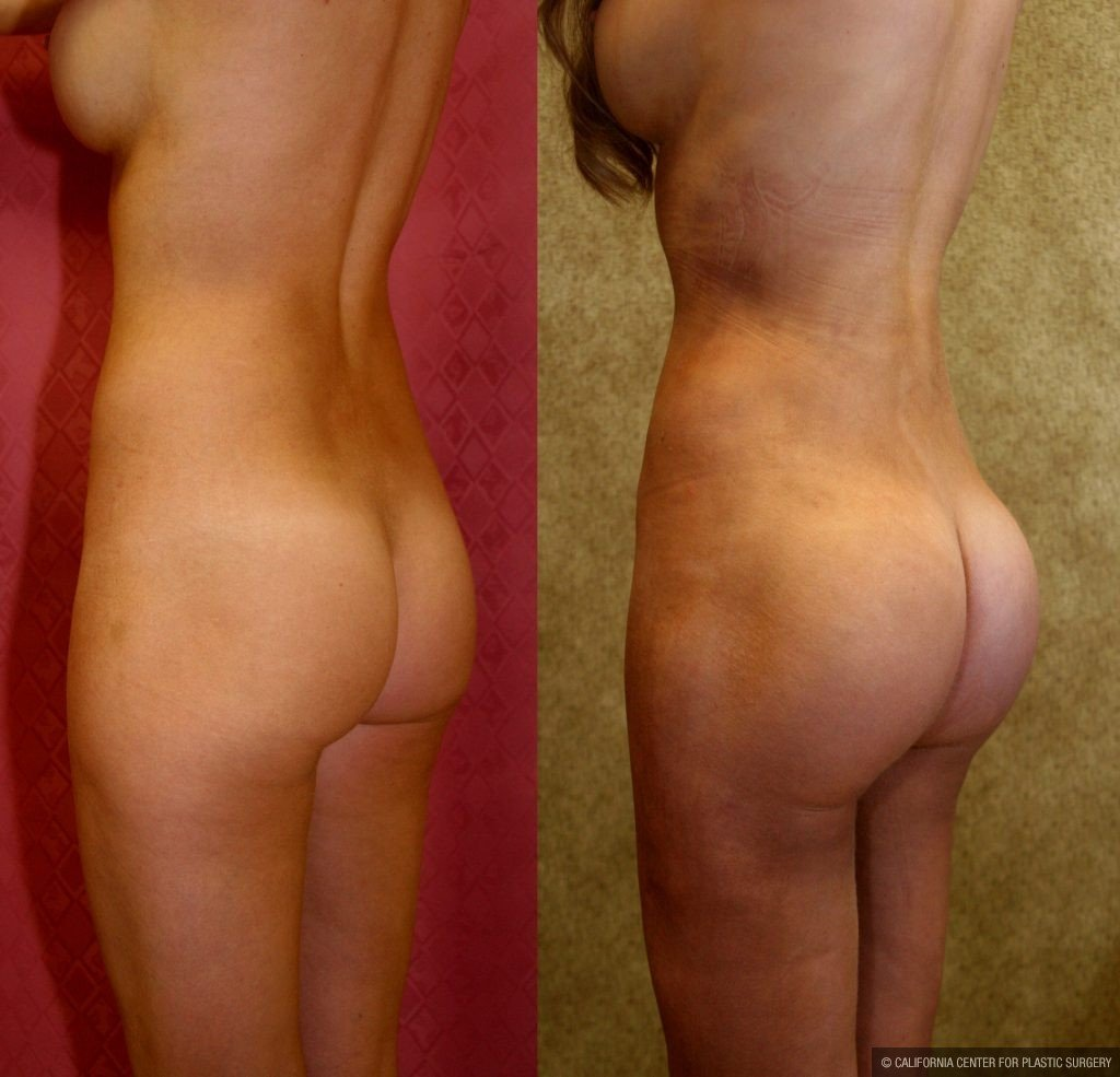 Body Contouring Before & After Patient #10410