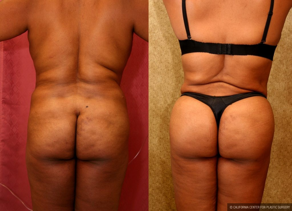Body Contouring Before & After Patient #10413