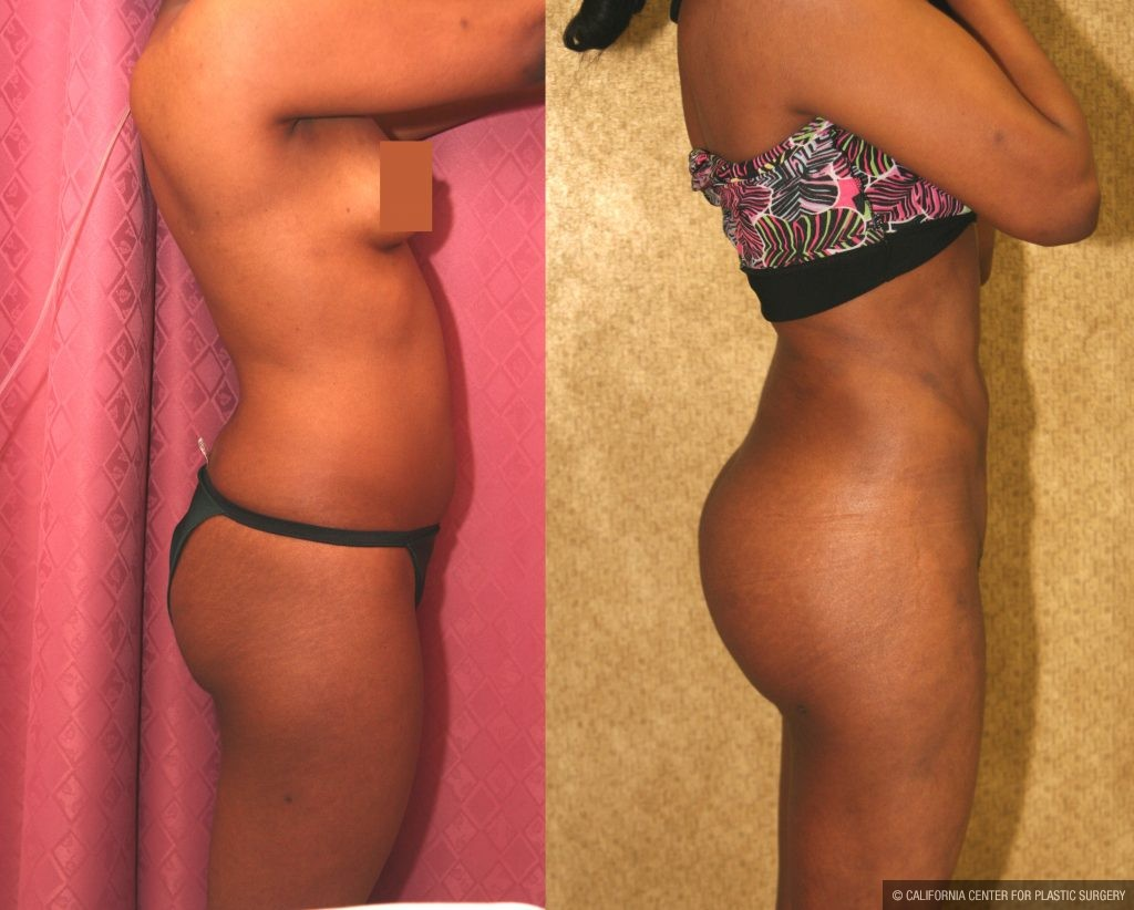 Body Contouring Before & After Patient #10404
