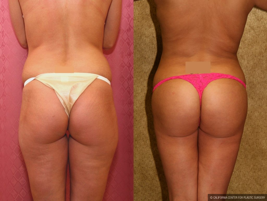 Body Contouring Before & After Patient #10416
