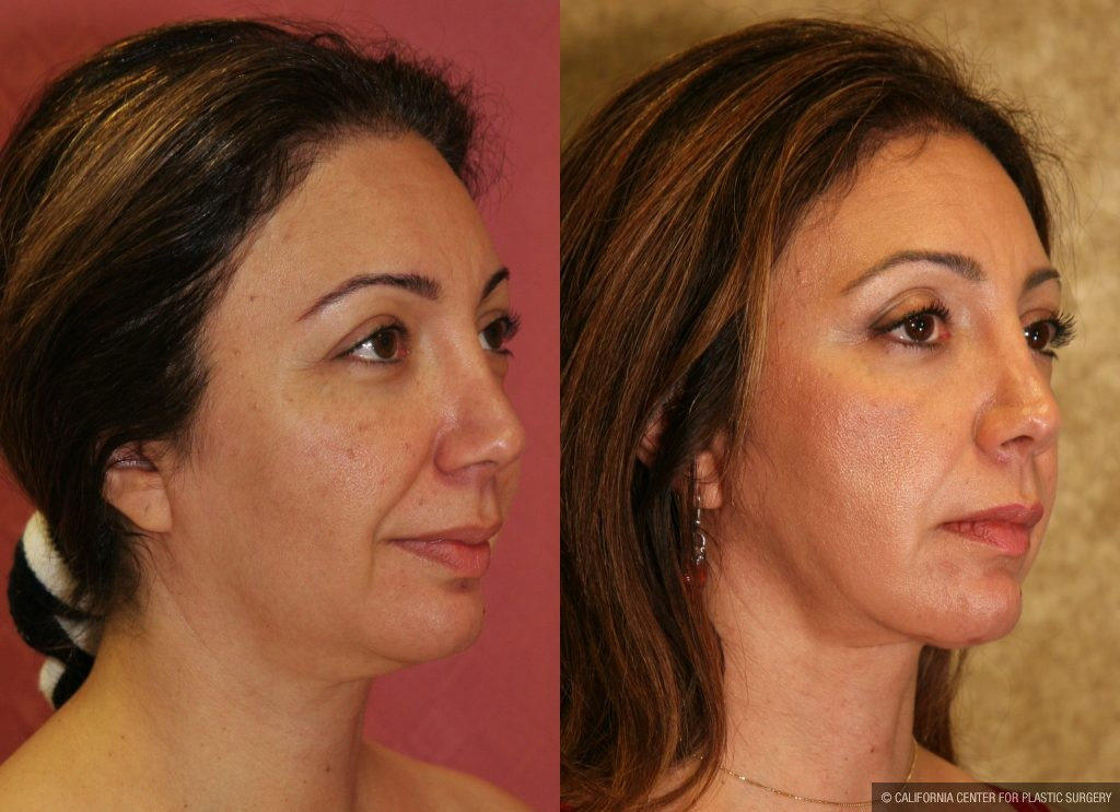 Facial Cosmetic Surgery Before & After Patient #10454