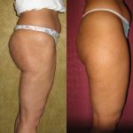 Body Contouring Before & After Patient #10336