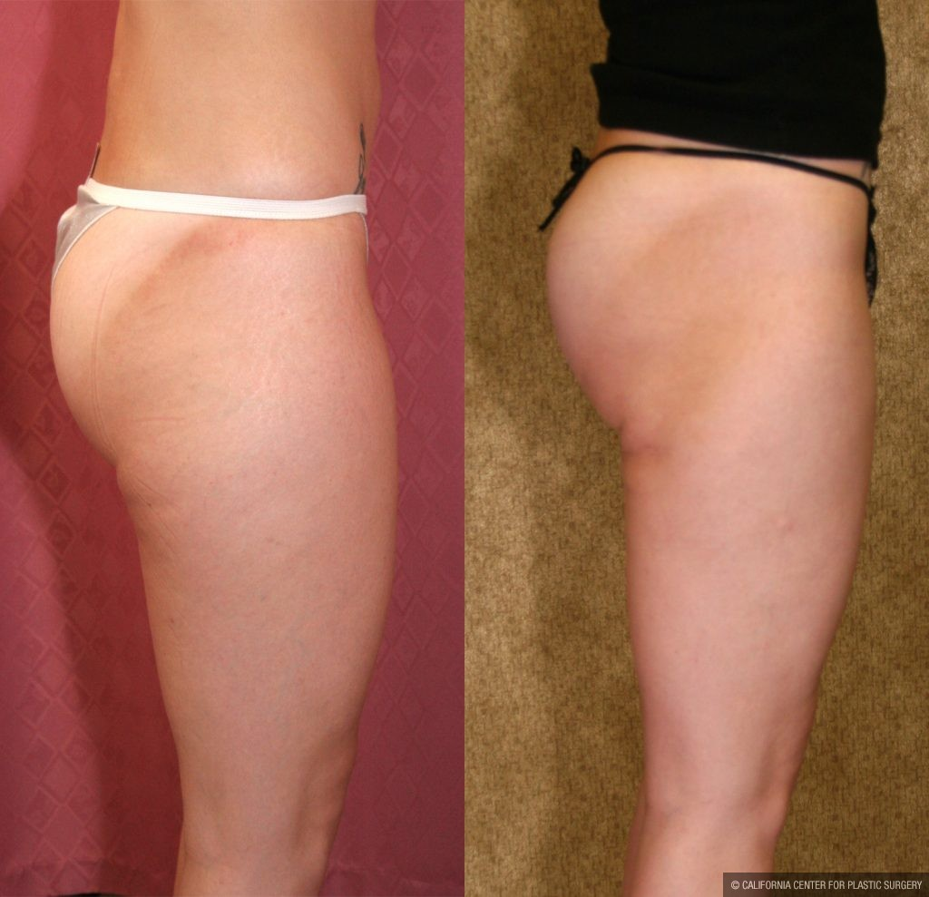 Body Contouring Before & After Patient #10327