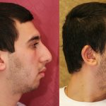Male Rhinoplasty Before & After Patient #10449