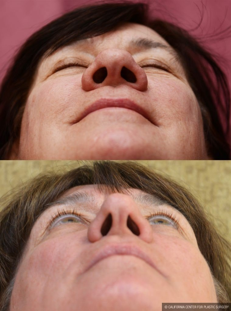 Caucasian Rhinoplasty Before & After Patient #10444