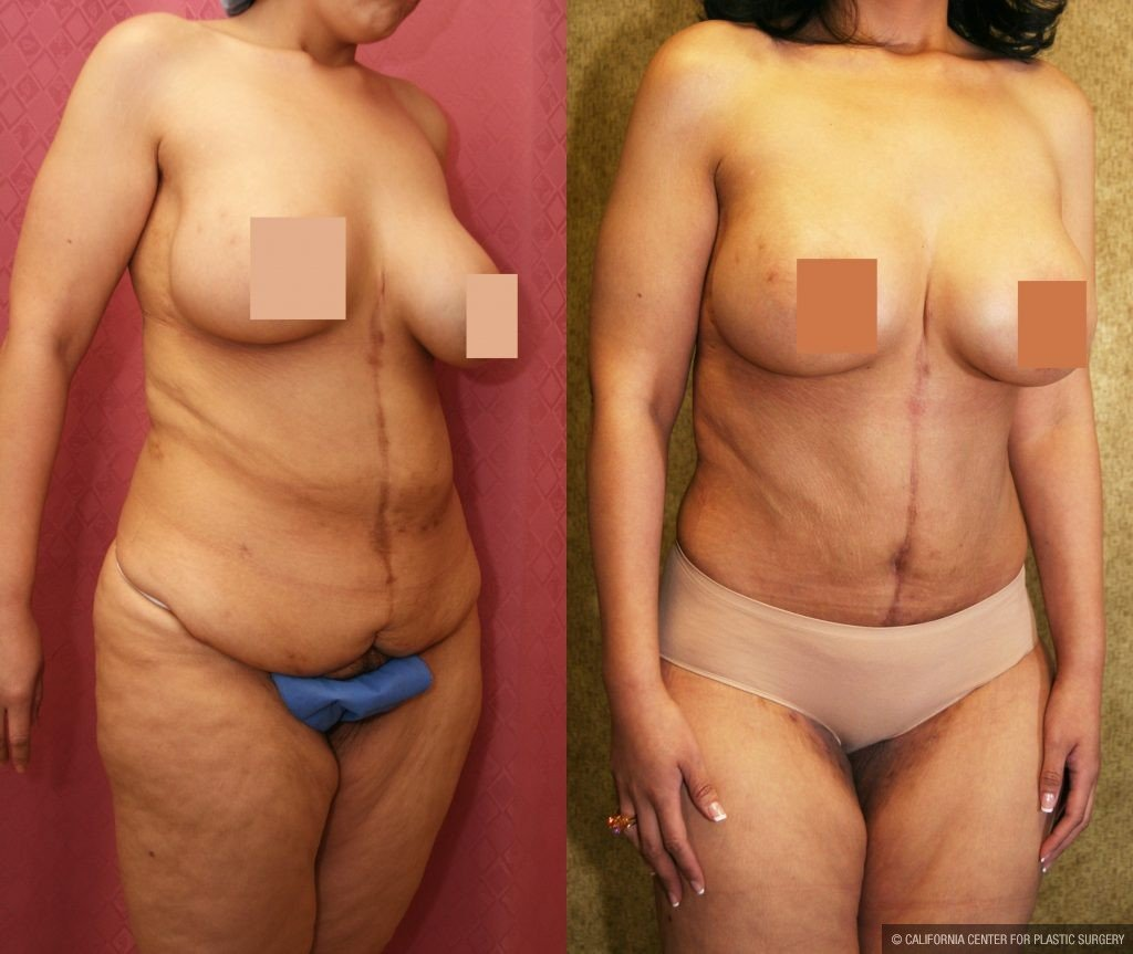 Body Contouring Before & After Patient #10400