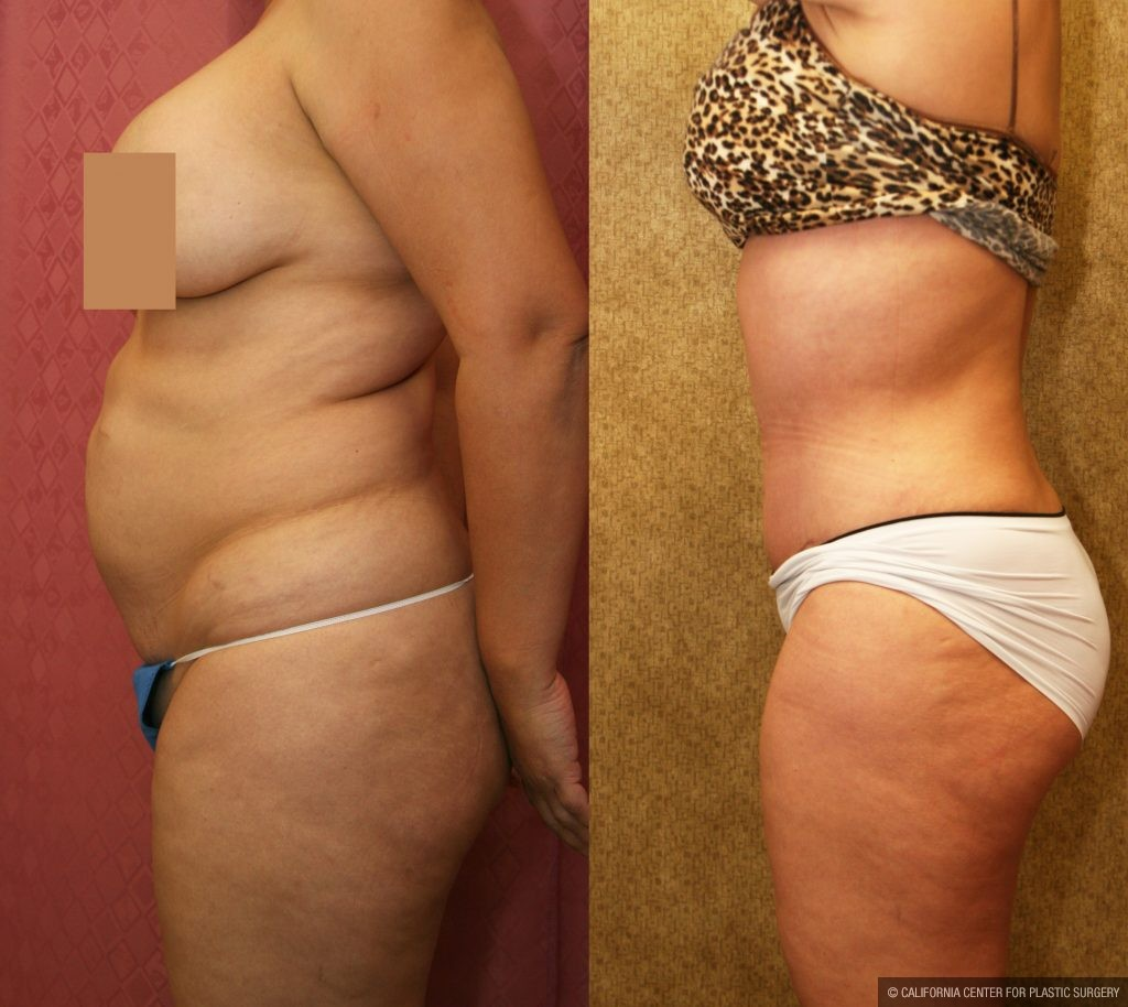 Body Contouring Before & After Patient #10350