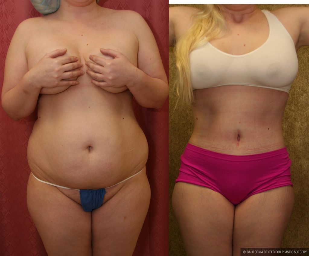 Patient 10346 Body Contouring Before And After Photos Encino