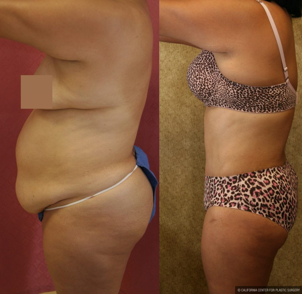 Body Contouring Before & After Patient #10396