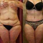 Body Contouring Before & After Patient #10290