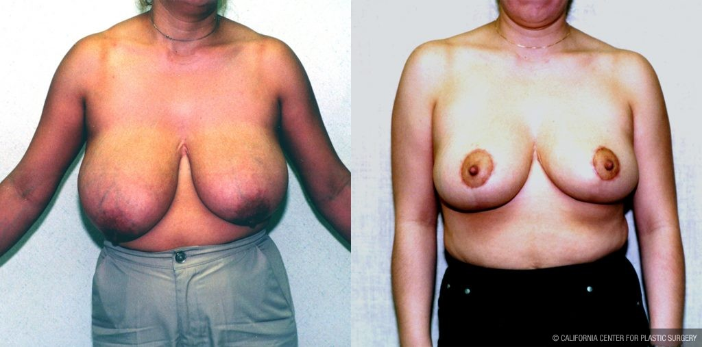 Breast Reduction Before & After Patient #10489