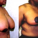 Breast Reduction Before & After Patient #10493