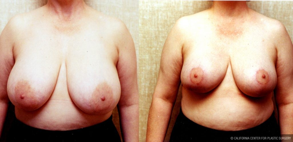 Breast Reduction Before & After Patient #10496