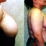 Breast Reduction Before & After Patient #10499