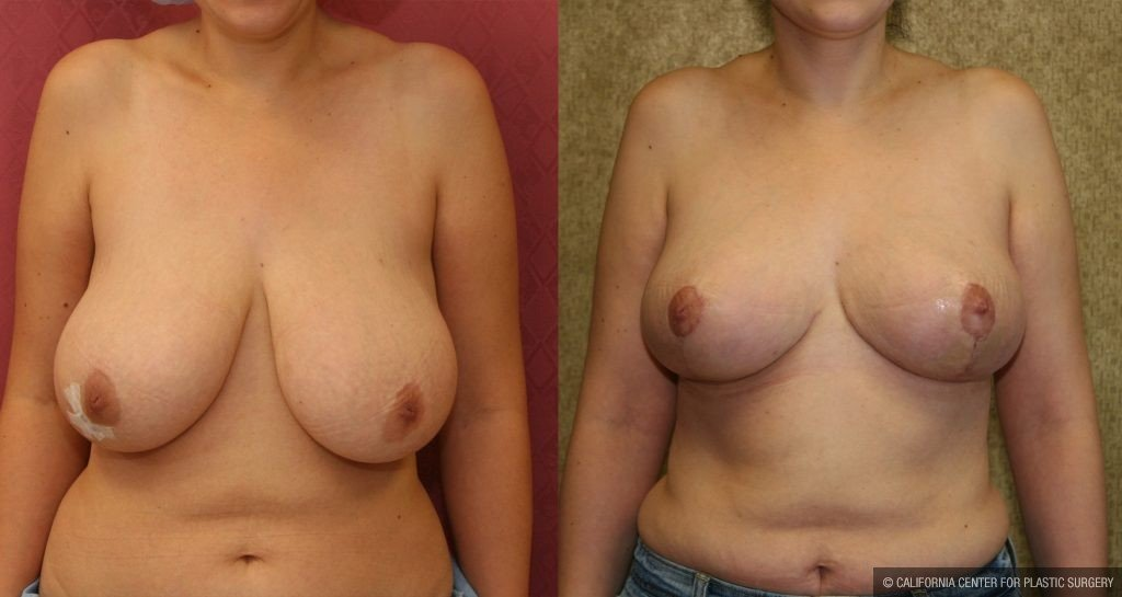 Breast Reduction Before & After Patient #10502
