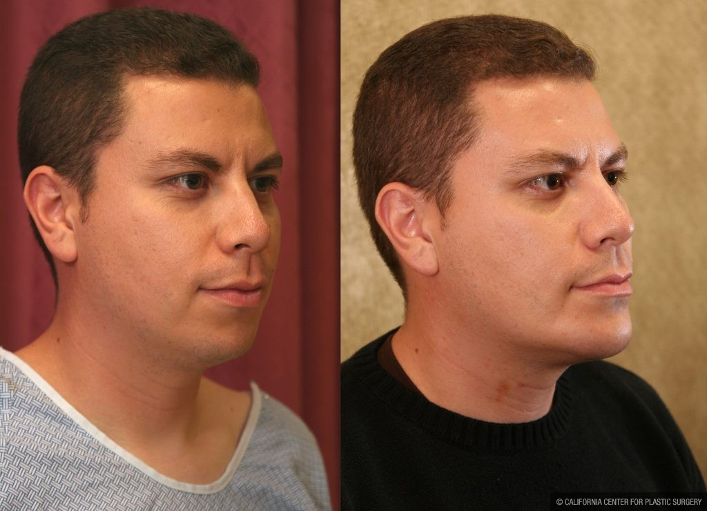 Facial Cosmetic Surgery Before & After Patient #10461