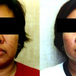 Laser Resurfacing Before & After Patient #10486