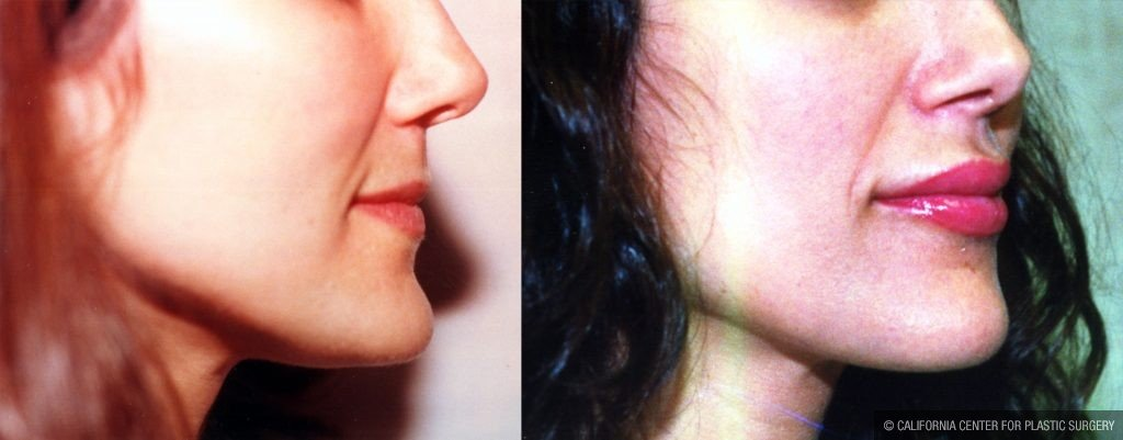 Facial Cosmetic Surgery Before & After Patient #10469