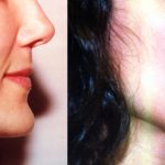 Lip Augmentation Before & After Patient #10469