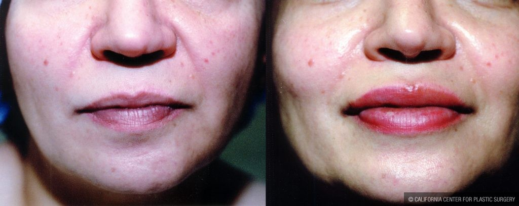 Lip Augmentation Before & After Patient #10472