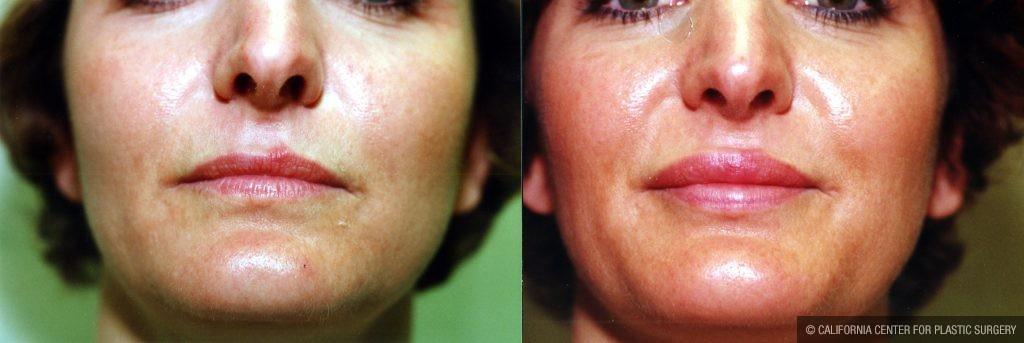 Lip Augmentation Before & After Patient #10476