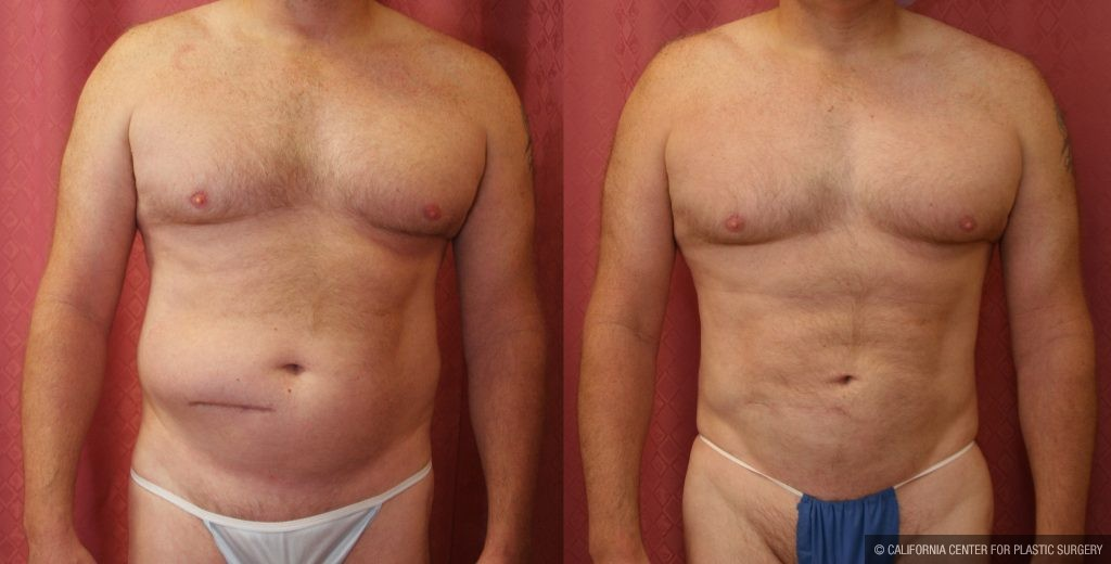 Male Liposuction Abdomen Before & After Patient #10279