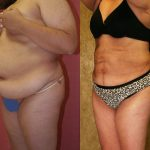 Body Contouring Before & After Patient #10282