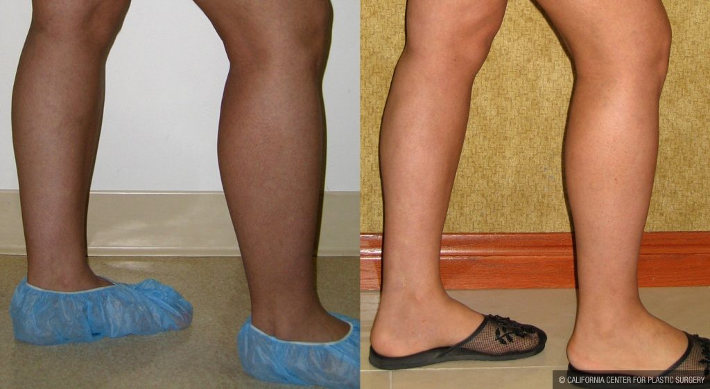 Body Contouring Before & After Patient #10321