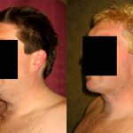 Male Neck & Face Liposuction Before & After Patient #10342
