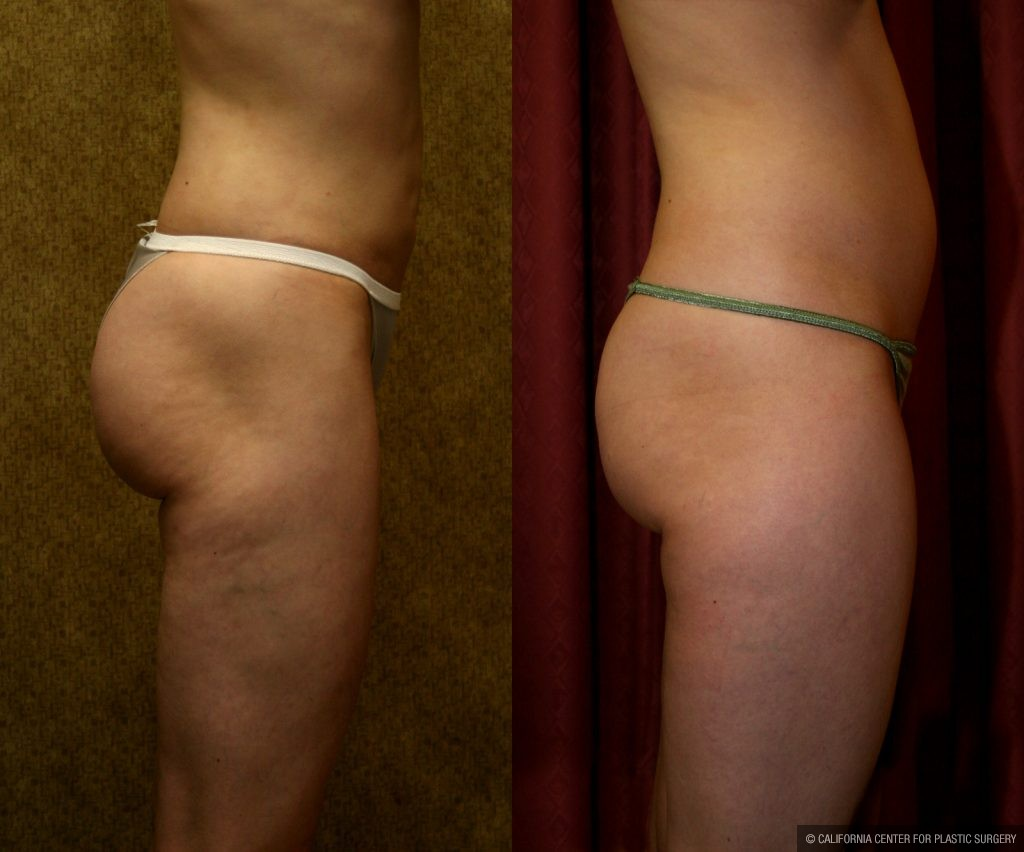 Body Contouring Before & After Patient #10332