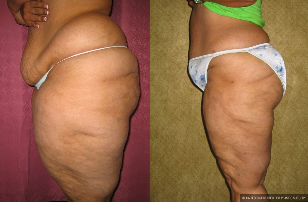 Body Contouring Before & After Patient #10339