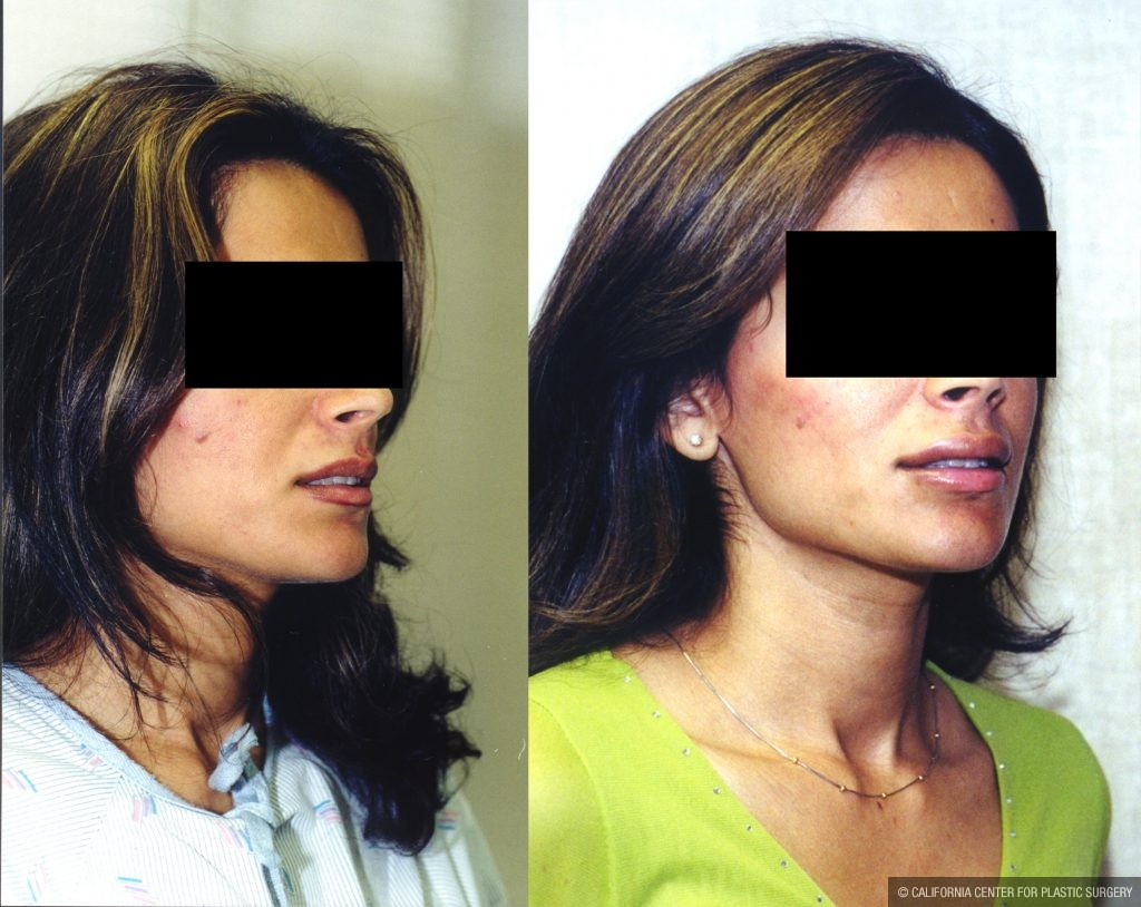 Lip Augmentation Before & After Patient #10482