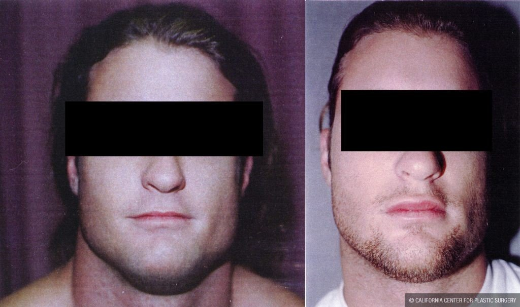 Facial Cosmetic Surgery Before & After Patient #10479