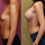 Breast Augmentation Before & After Patient #10804