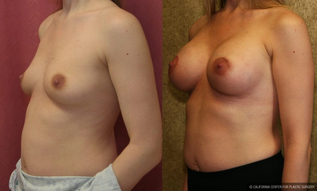 Breast Augmentation Before & After Patient #10795
