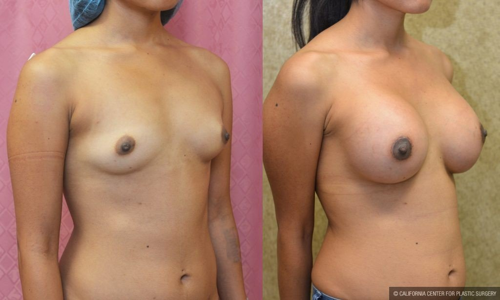 Breast Augmentation Before & After Patient #10808