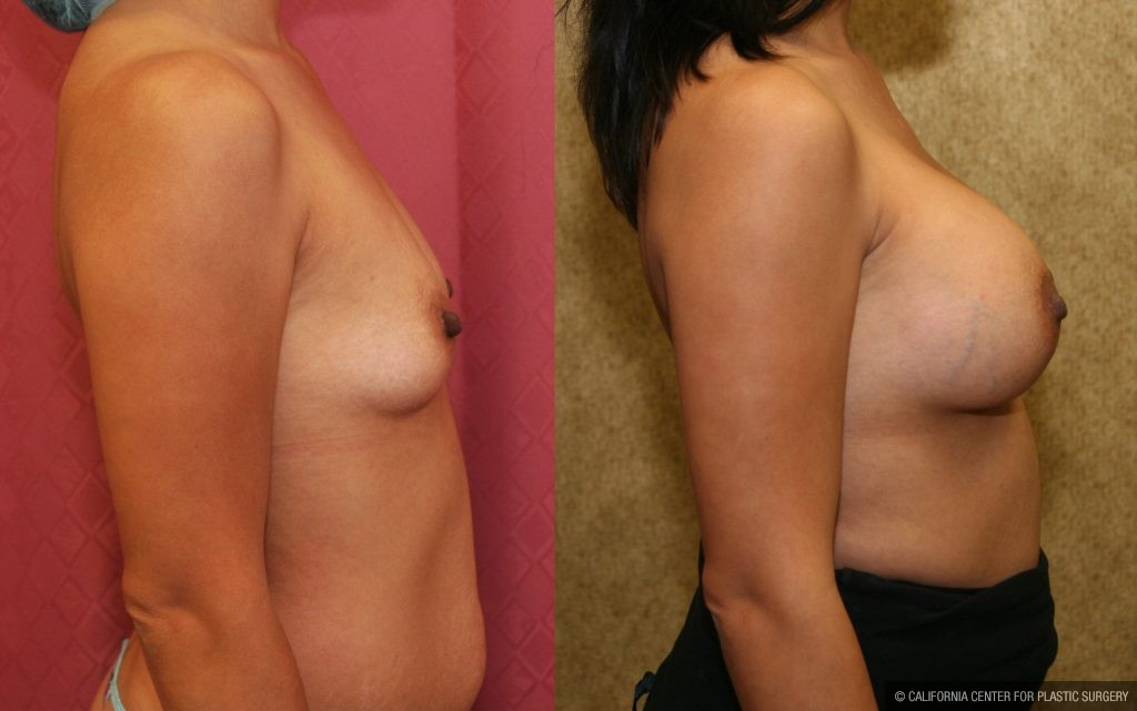 Breast Augmentation Before & After Patient #10812