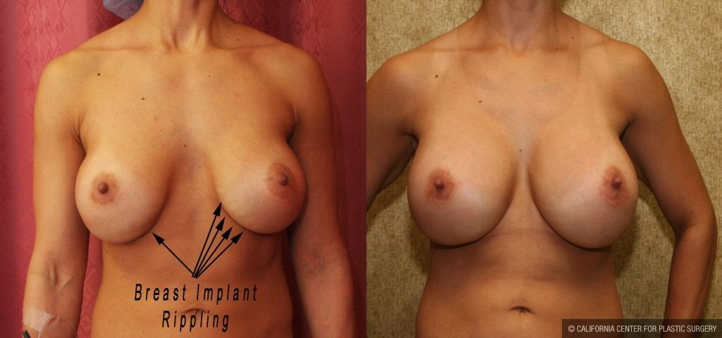 Breast Augmentation Before & After Patient #10816