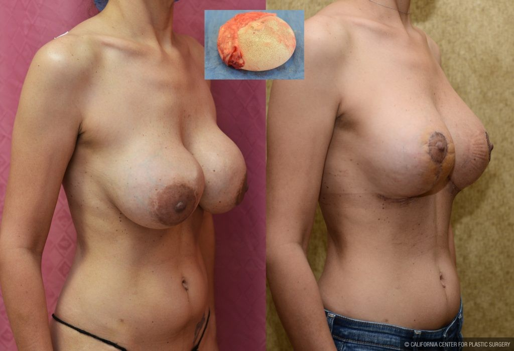 Breast Augmentation Before & After Patient #10822