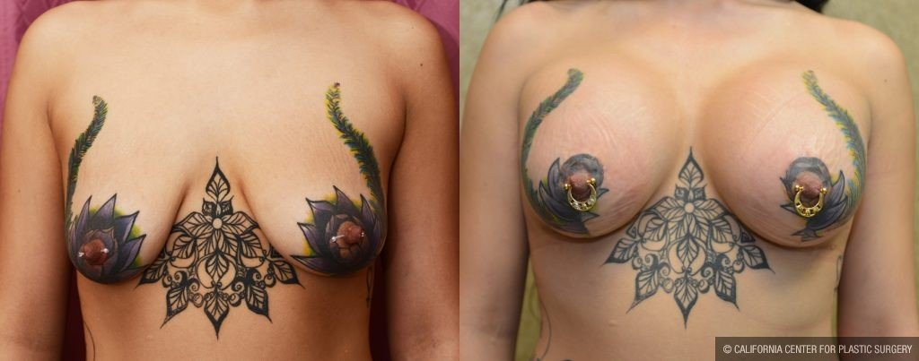 Patient 10835 Breast Lift Before And After Photos Los