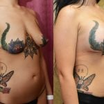 Breast Lift Before & After Patient #10835