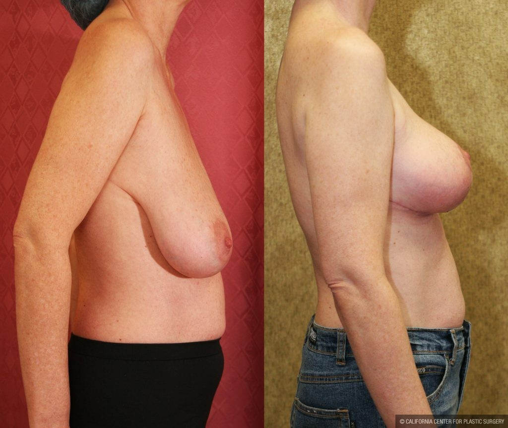Breast Lift Before & After Patient #10826