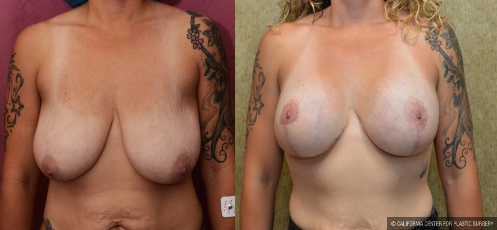Breast Lift Before & After Patient #10831