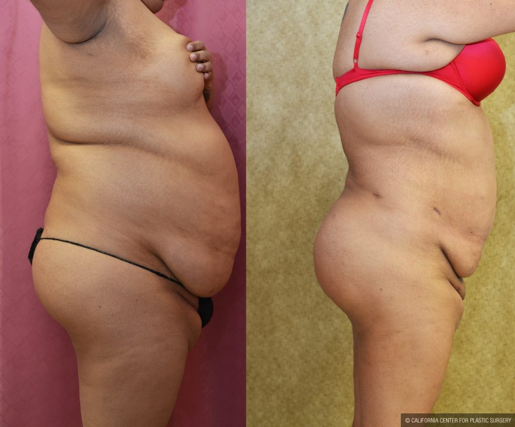 Buttock Lift/Augmentation Before & After Patient #10844