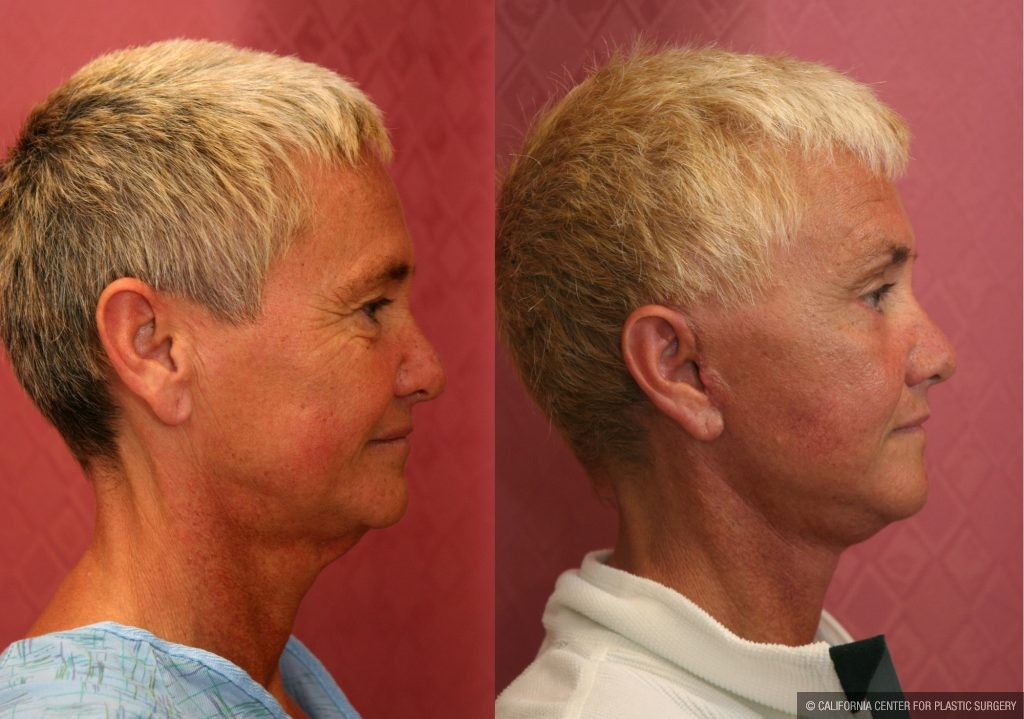 Mid-Facelift Before & After Patient #10940