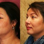 Asian Rhinoplasty Before & After Patient #11009