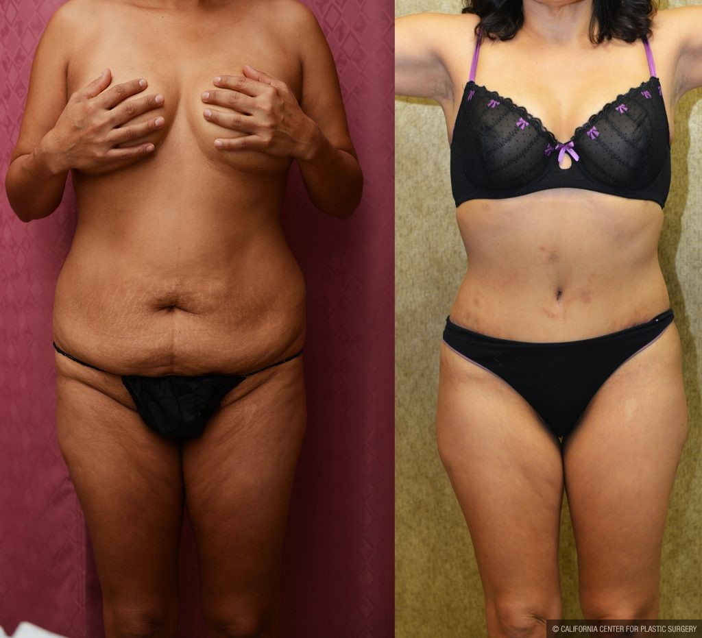 Tummy Tuck Small Size Before & After Patient #11056